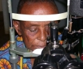 arumeru-cataract-patient-before-surgery