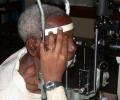 rombo-cataract-after-surgery